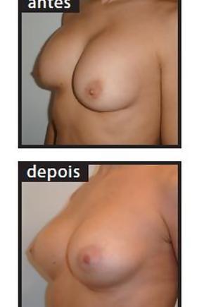 Quantos é necessário beber cones de pulo do aumento em um peito