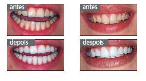 Branqueamento Dentario Beleza E Estetica Sapo Lifestyle